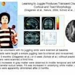 ジャグリング(お手玉)でパニック障害を克服する方法: